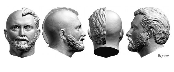 3D Head Scan - Hair Treatments