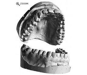 Teeth Cast 3D Scan